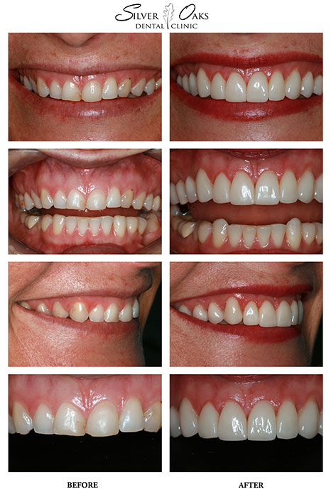 Dental Veneers Case 18