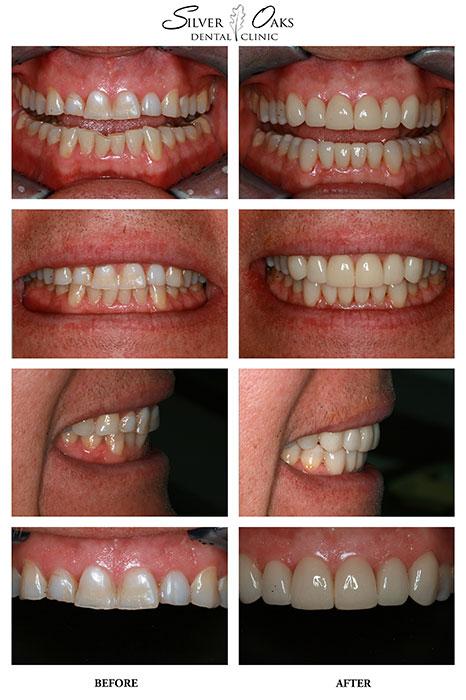 Dental Veneers Case 19