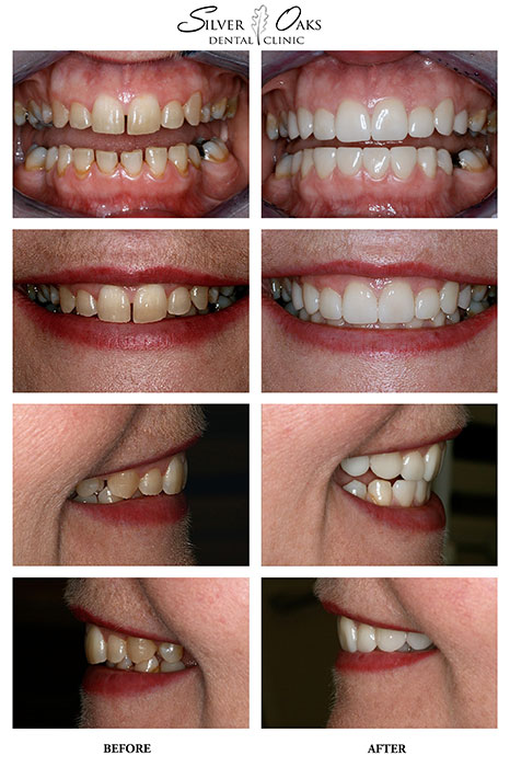 Dental Veneers Case 6