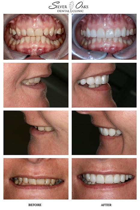 Dental Veneers Case 7