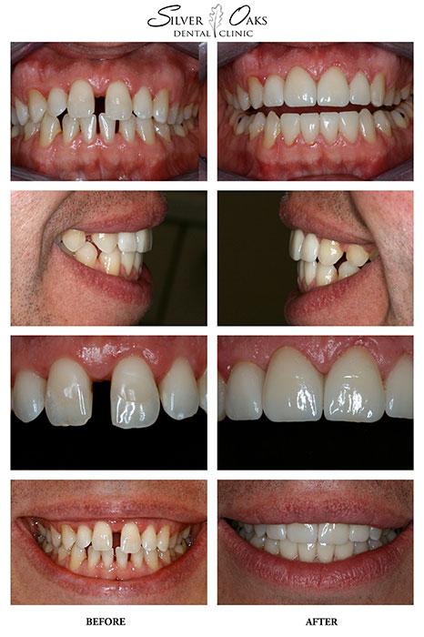 Dental Veneers Case 8