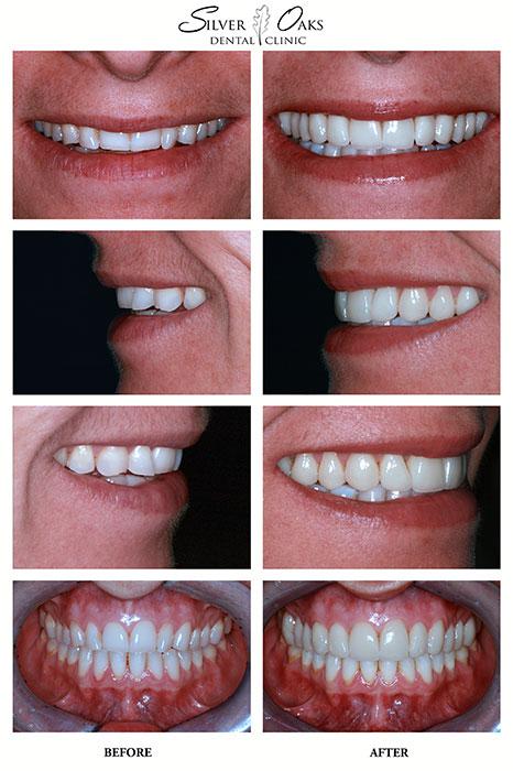 Dental Veneers Case Cara
