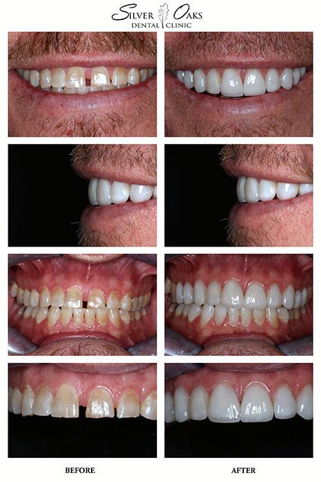Dental Veneers Case Craig