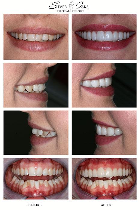 Dental Veneers Case Lashe