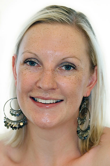 Dental Veneers Case Vicky