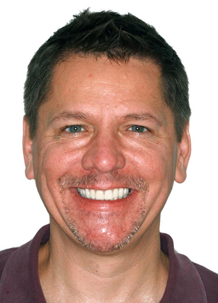 Dental Veneers Patient Jason