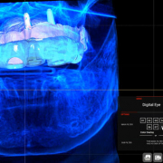 Digital Dentistry South Africa