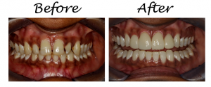 How To Fix The Gaps Between Your Teeth 2