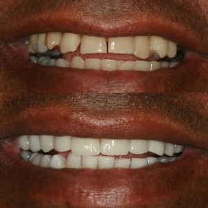 How to look younger with Cosmetic Dentistry 2