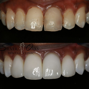 How to look younger with Cosmetic Dentistry