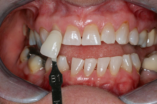 Teeth Whitening Patient 1 - After