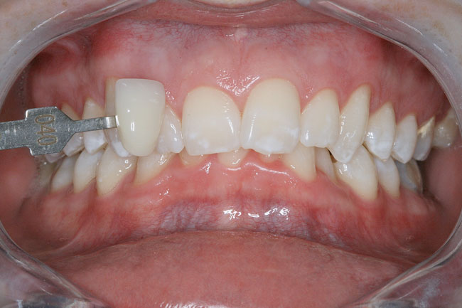 Teeth Whitening Patient 2 - After