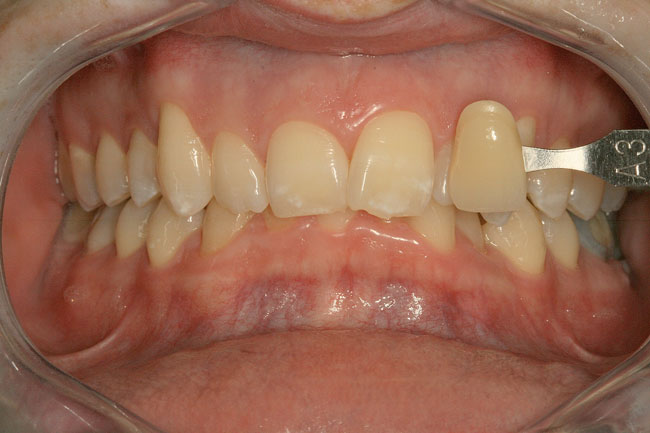 Teeth Whitening Patient 2 - Before