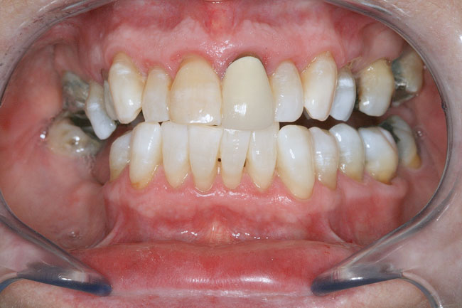 Teeth Whitening Patient 3 - After