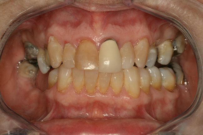 Teeth Whitening Patient 3 - Before