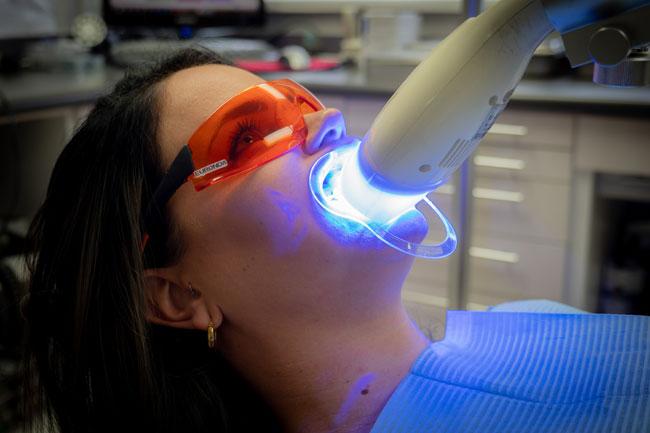 Teeth Whitening Process Step 3