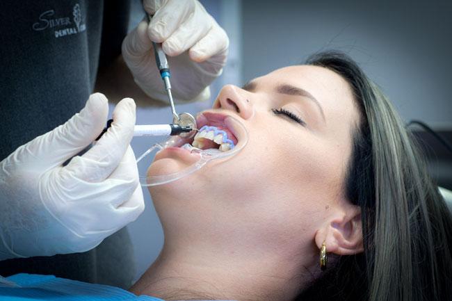 Teeth Whitening Process Step 1