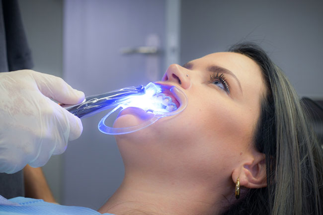 Teeth Whitening Process Step 2