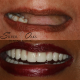 The consequences of tooth loss