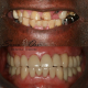 Tooth Loss Could Be Causing Depression 6