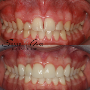 Top Cosmetic Dentistry At Incredibly Competitive Prices 1
