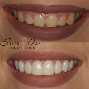 Top Cosmetic Dentistry At Incredibly Competitive Prices 3