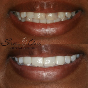 Top Cosmetic Dentistry At Incredibly Competitive Prices
