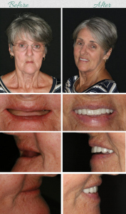 What Happens If Your Missing Teeth Are Not Replaced