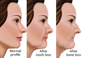 What Happens If Your Missing Tooth Is Not Replaced