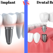 a dental implant vs a dental bridge