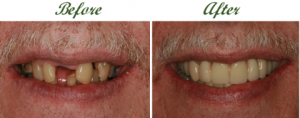 are dental implants affordable 2