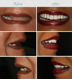 are dental implants affordable