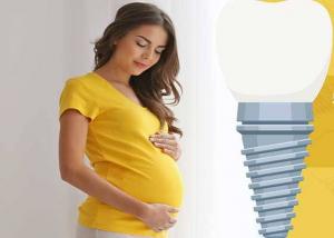 are dental implants safe for pregnant mothers