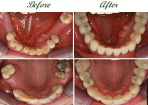 are dental implants worth it 2