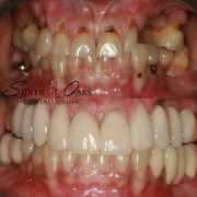 best countries for dental implants