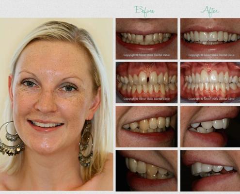 cosmetic dentistry durban