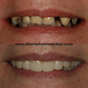 Cosmetic dentistry in South Africa