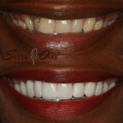 cost of dental veneers
