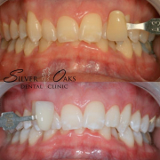 cost of teeth whitening durban