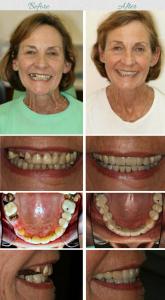 dental bridges 1