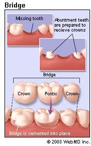 dental bridges types