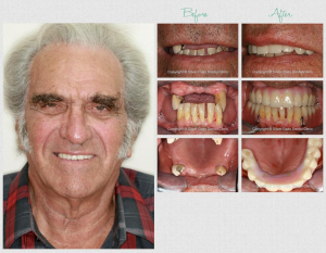 dental implant aftercare 1