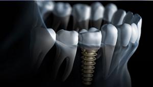 dental implants Silver Oaks Dental Clinic