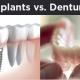 dental implants vs dentures 3