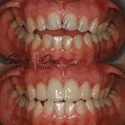 dental veneers on a patient f