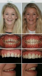 dental veneers procedure on a patient from Australia