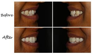fixing the gaps between your teeth 3