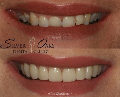 how dental veneers are applied