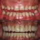 how long do dental implants last