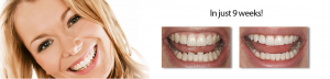 how to straighten teeth fast 2